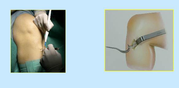 operacion-rodilla-01