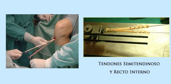 operacion-rodilla-03