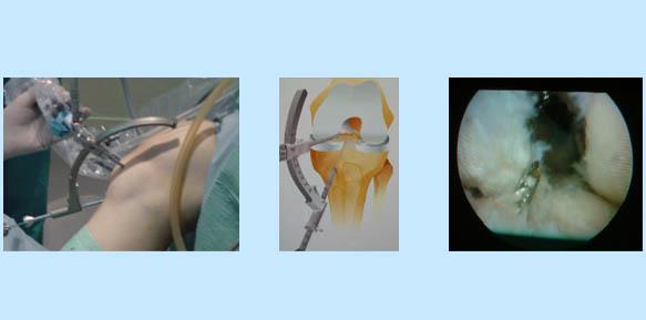 operacion-rodilla-05