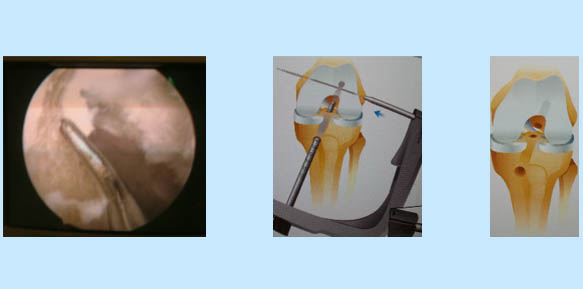 operacion-rodilla-06