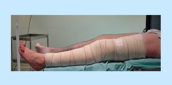 operacion-rodilla-09