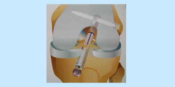 operacion-rodilla-10