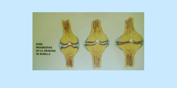 artrosis-02