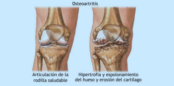 artrosis-05