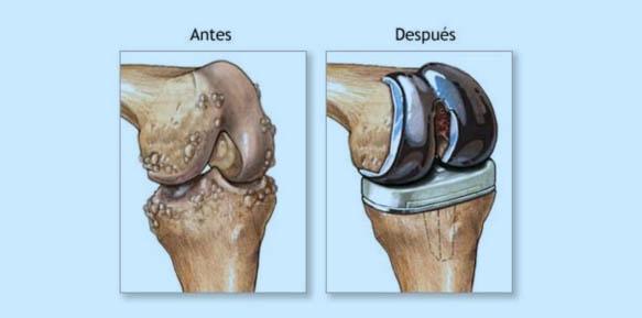 artrosis-08