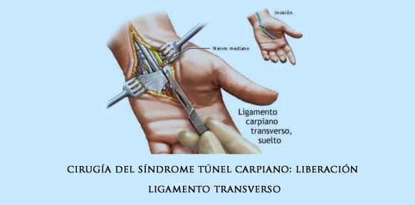 carpiano-04