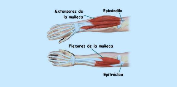 Epicondilitis (codo de tenista y golfista) | Doctor Javier Vaquero ...